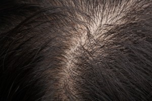 Thinning hair is a sure sign that trouble lies ahead.