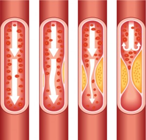 Over time, the buildup of plaque on the walls of blood vessels can sharply diminish blood flow, which can make it difficult or even impossible to get and keep an erection.