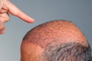 New hair growth can be seen in this area of the scalp into which micrografts were implanted.