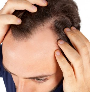 By age 35, most men have begun to notice a loss of hair.