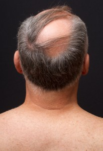 Comb-overs are not particularly effective if you don't enough hair left to cover up the bald spots.