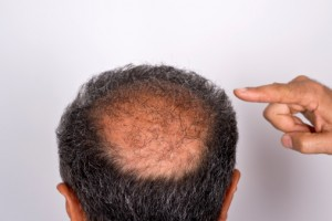 This photo shows the regrowth of hair into a balding area six months after a hair transplant procedure.
