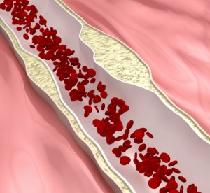 Atherosclerosis, or hardening of the arteries, can cause erection problems and cardiovascular disease.