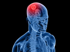 Researchers at Virginia Commonwealth University found that combining sildenafil and a drug known as OSU-03012 may provide a more effective treatment for brain cancer.