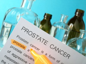 Prostate cancer is the second leading cause of cancer death in American men.