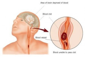 About 87 percent of all strokes suffered in the United States are ischemic, caused by a blood clot cutting off blood flow to a portion of the brain.