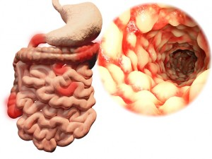 Crohn's disease is one of the most common forms of inflammatory bowel disease.
