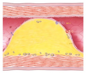 Atherosclerosis, the buildup of plaque on the walls of your arteries, can cause erection problems and, left untreated, could eventually lead to a heart attack or stroke.