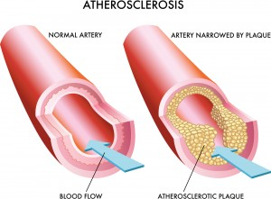 One of the most common causes of ED is atherosclerosis, the buildup of artery-clogging plaque that can compromise blood flow to your penis, heart, and brain.