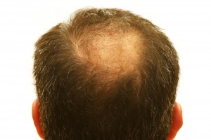 Signs of hair loss may be discouraging, but there are some proven ways to fight back.