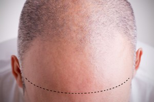 For this man, whose hair has receded significantly from his original hair line, scalp micropigmentation offers a way to fill in the area of hair loss.