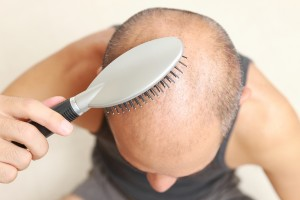 Scalp micropigmentaton offers yet another way for balding men to make their hair loss less noticeable.