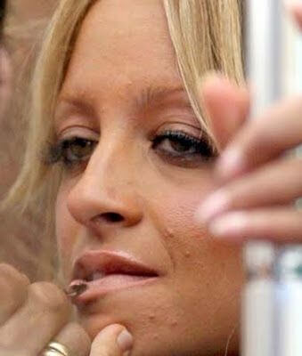 celebrity with acne - video dailymotion