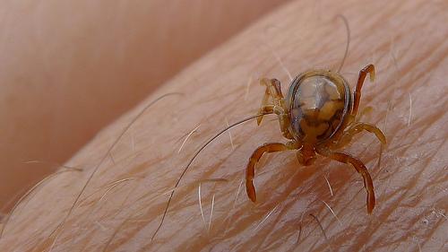 Tick Bite Starts Meat Allergy