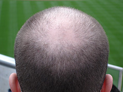 How Shaved Heads are Perceived Shaving A Mans Head