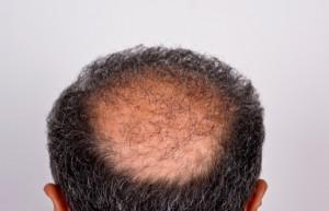 Propecia helping make hair loss