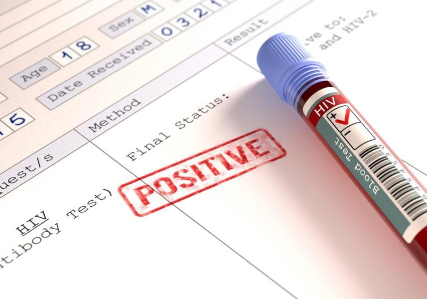 Как не заразиться ВИЧ Обследование 25