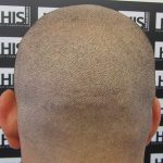 9 Facts to Know About Scalp Micropigmentation