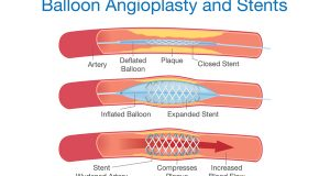 Viagra's Latest Upside? Reducing Blood Clots After Stent Surgery