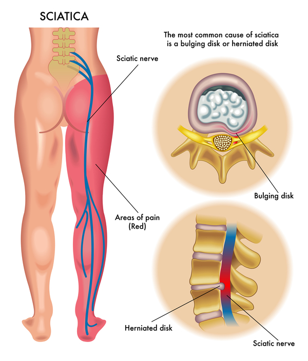 L5 s1 disc protrusion anal pain