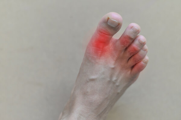 Is gout caused by being overweight and dating