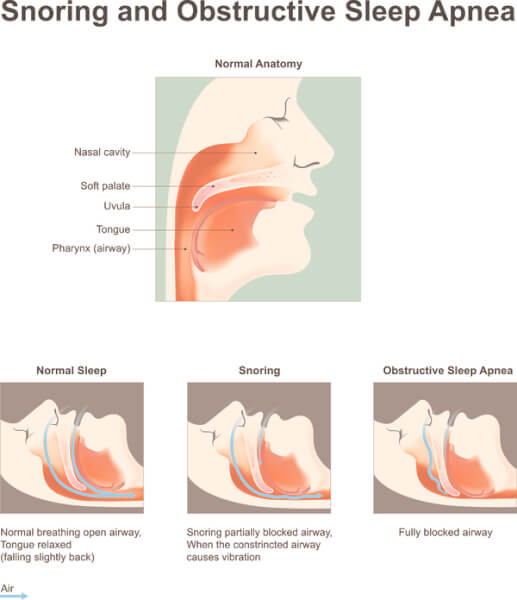 What You Should Know About Sleep Apnea and Erection Problems ...
