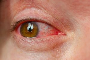 Person with redness in their eye.
