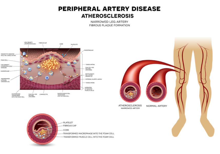 Peripheral artery disease illustration.