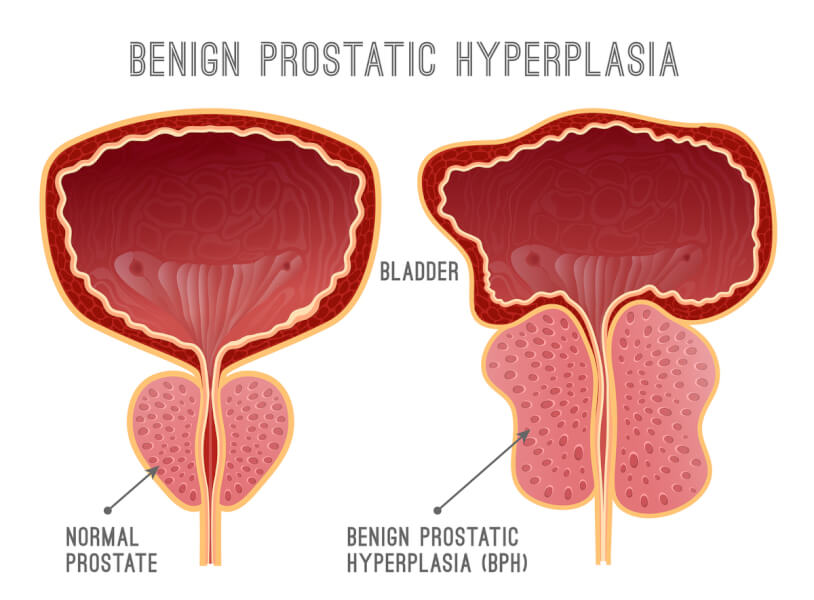 Graphic drawing of a normal prostate and hyperplasia prostate.