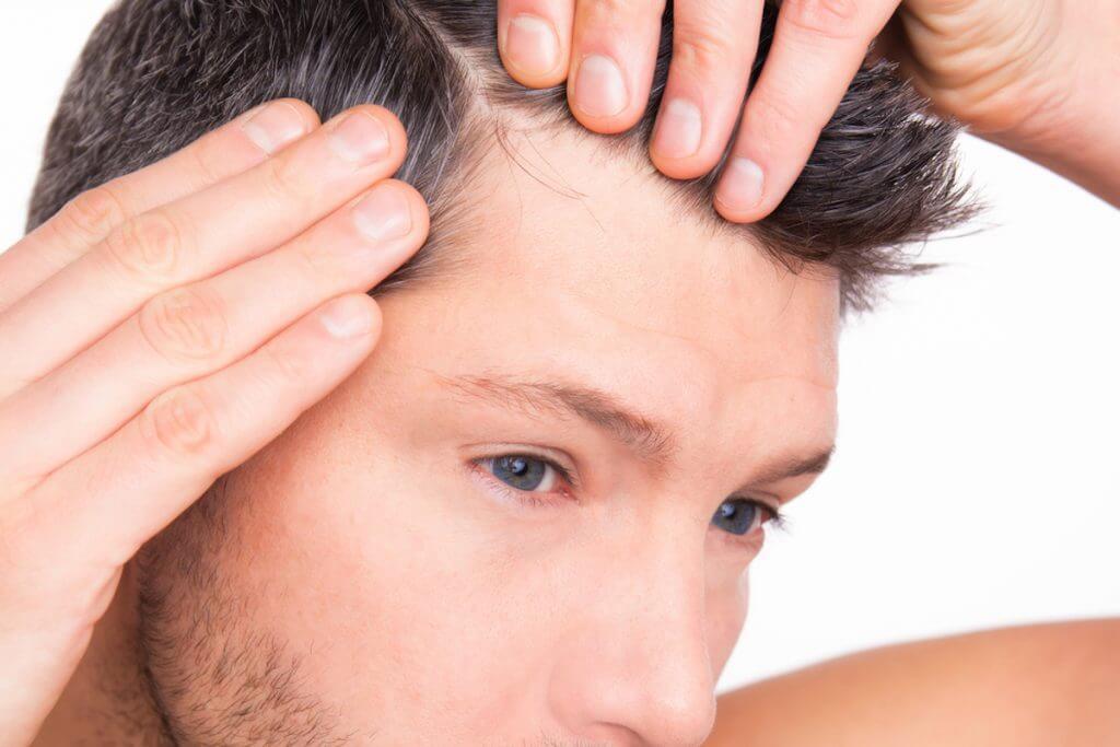 Man looking at his hair loss.