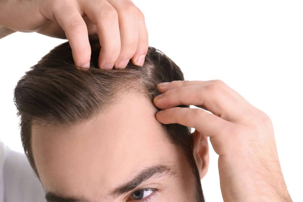 Man looking at his hair line.