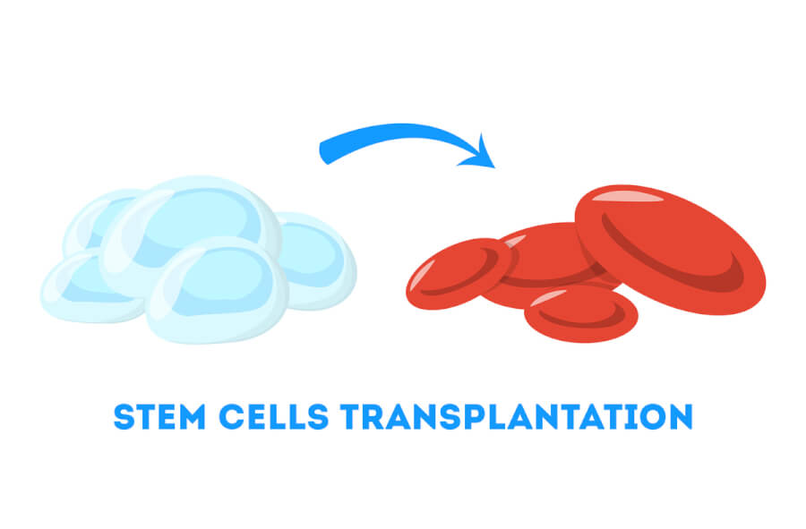Stem cells transplantation.