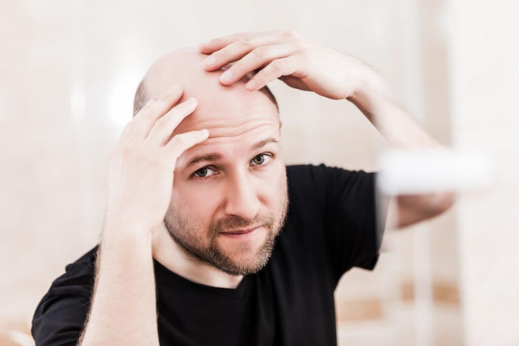 Man looking at his scalp.