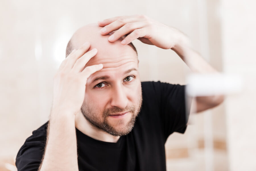 Man looking at his scalp.