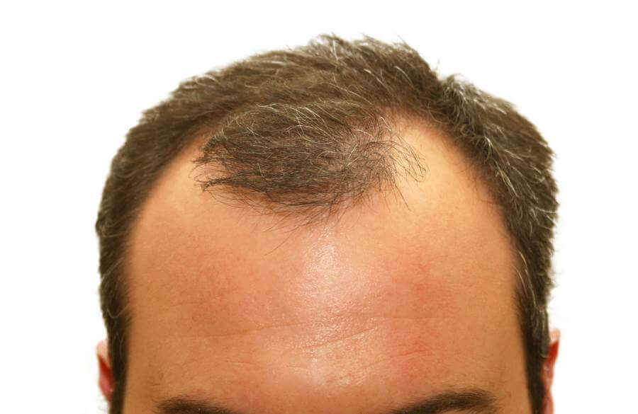 Man with receding hairline.
