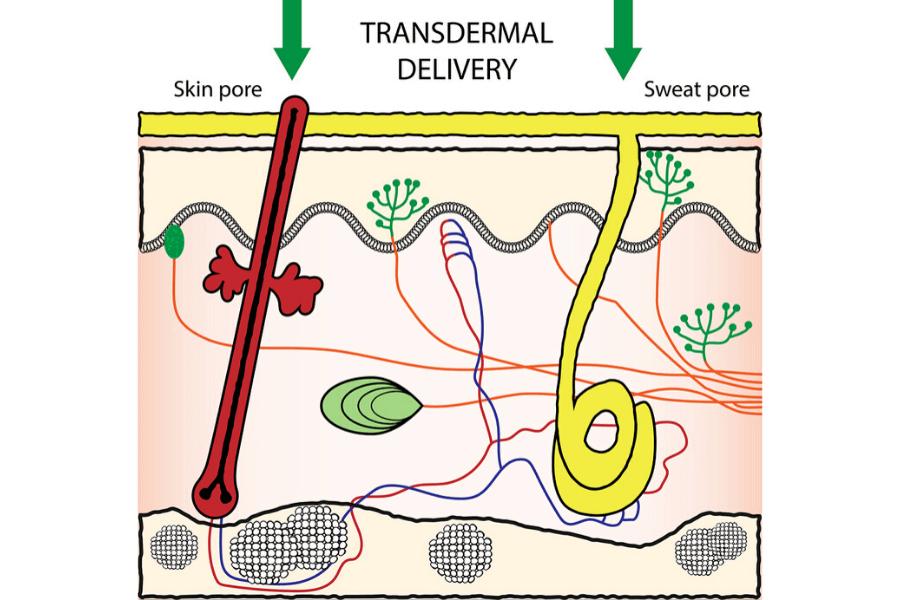 Transdermal delivery of medication.