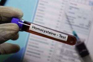 Homocysteine test vile.