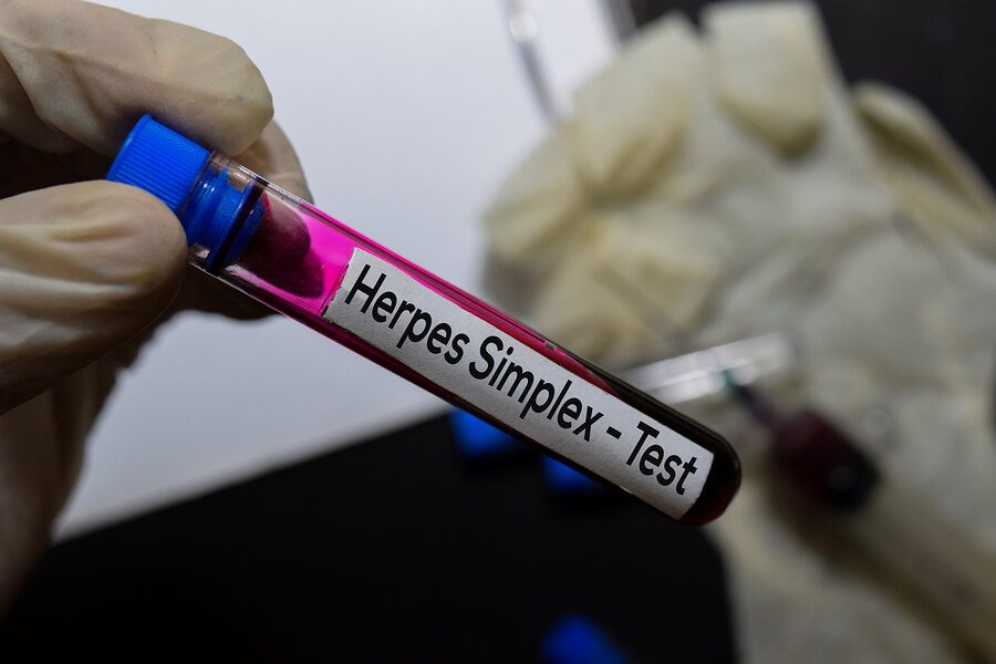 Blood test tube labeled Herpes Simplex Test.