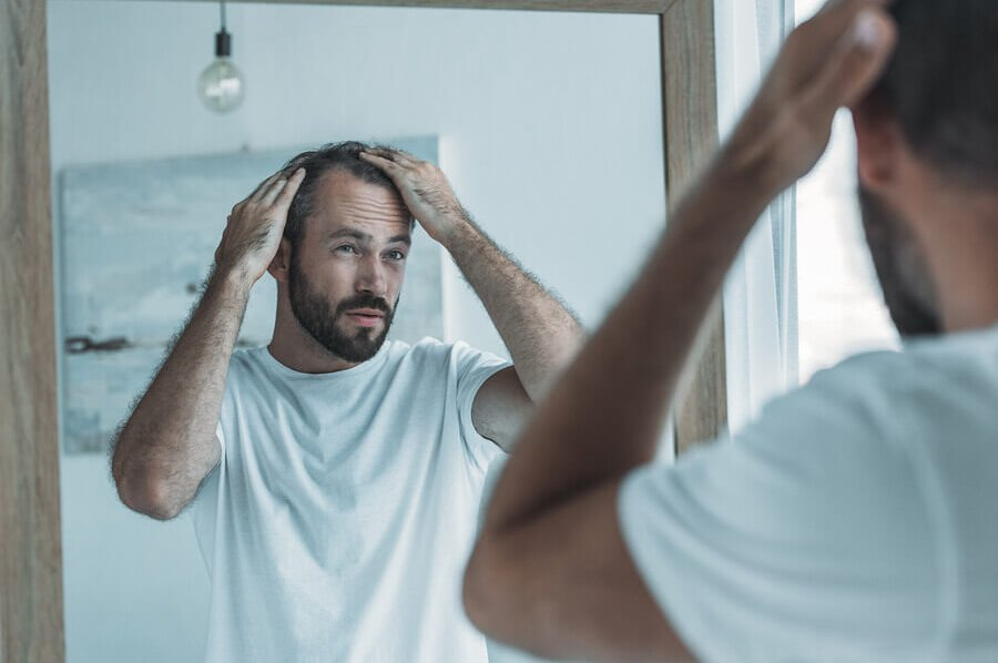 Man looking at his receding hair line in a mirror.