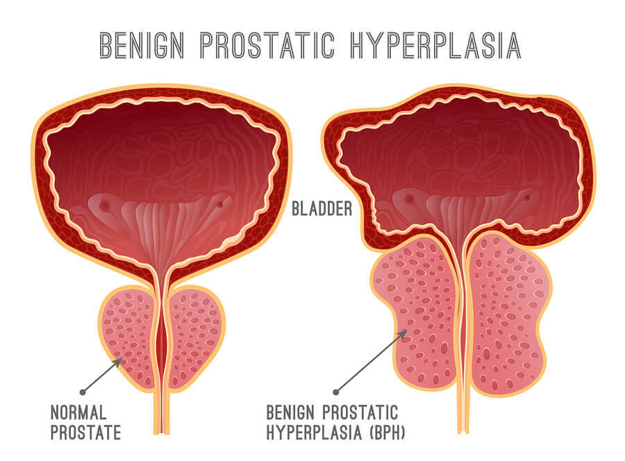 Diagram showing normal prostate compared to one that has benign prostatic hyperplasia.