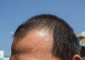 Man with receding hair line.