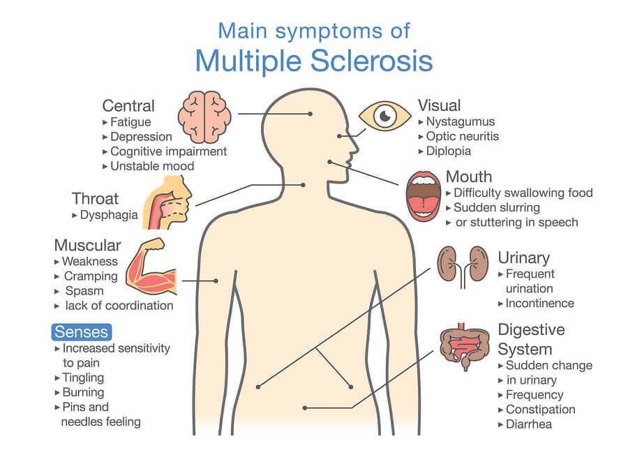 Multiple sclerosis chart.