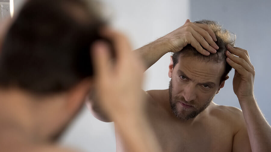 Man looking at his scalp in a mirror.