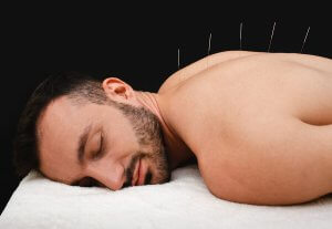 Acupuncture needles in a mans back.