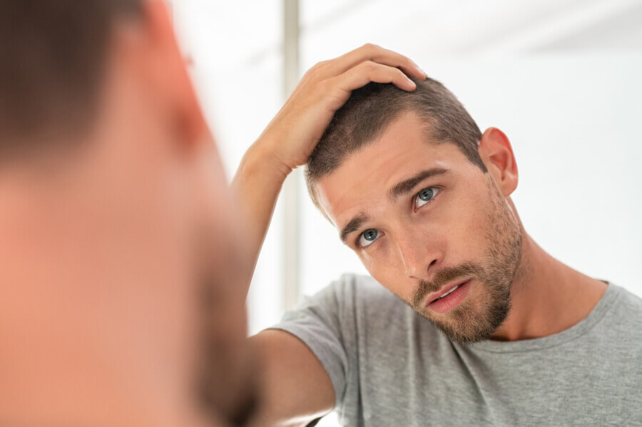 Man looking at his thinning hair line in a mirror.